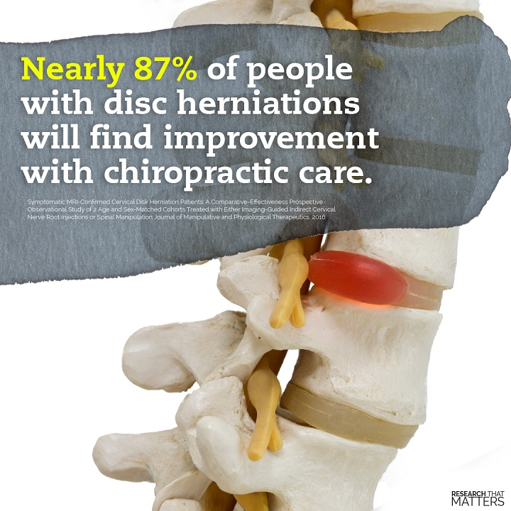 herniated disc bulging disc cincinnati chiropractor spine back pain neck pain
